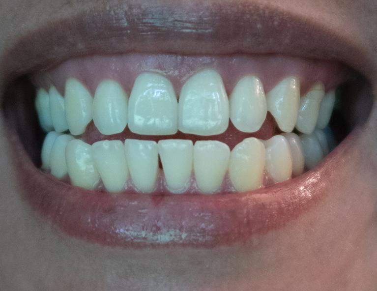 Diş Gıcırdatma Sebepleri