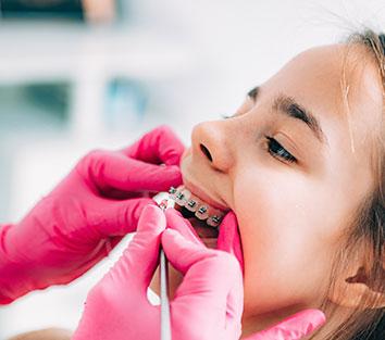 Ortodonti Nedir?