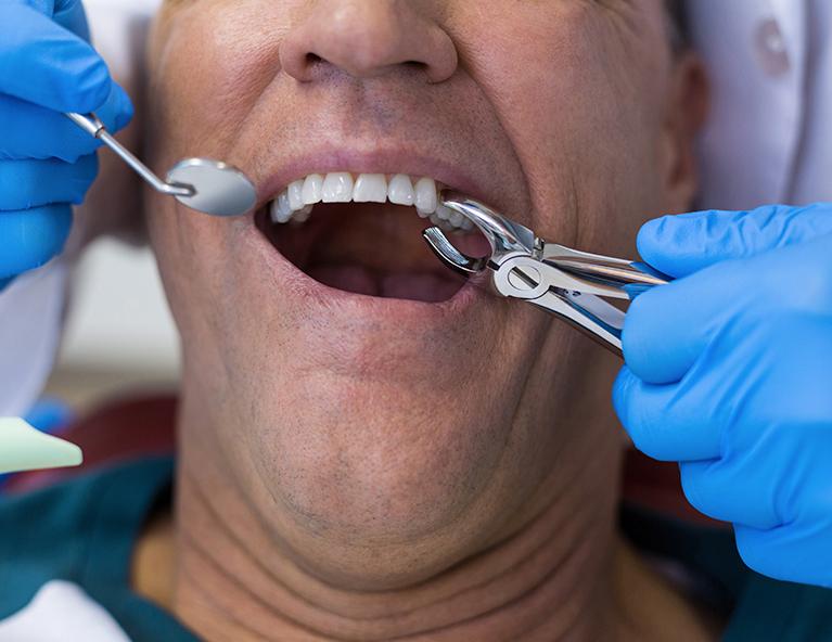Выпадение коренного зуба
