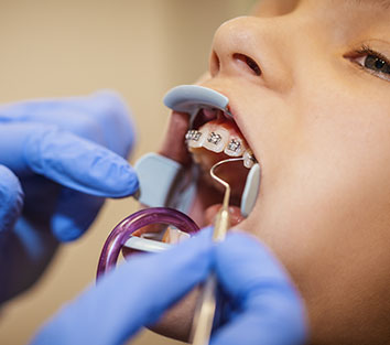 When should orthodontic treatment be done?
