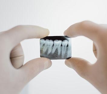 Do dental x-ray graphs harm my child?